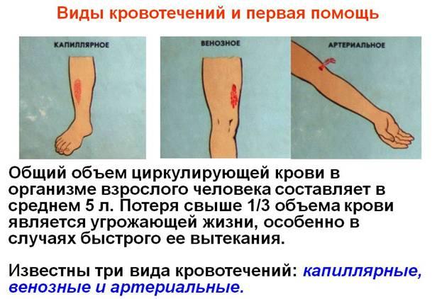 Первая помощь при кровотечениях. Полные уроки — Гипермаркет знаний