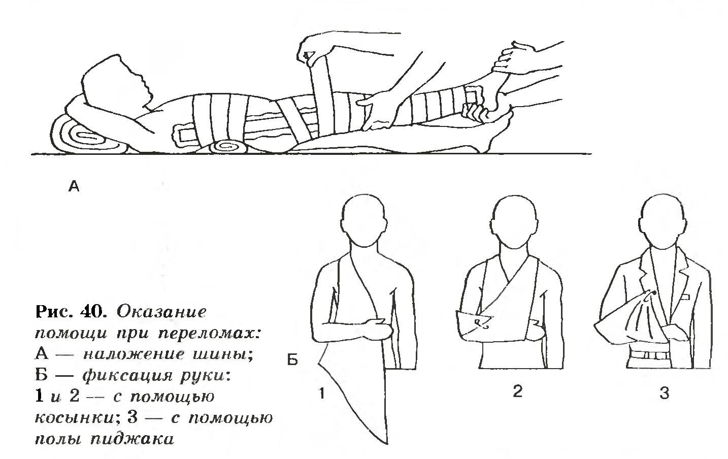 Оказание первой помощи при ушибах вывихах суставов и переломах костей ортроз мелких суставов