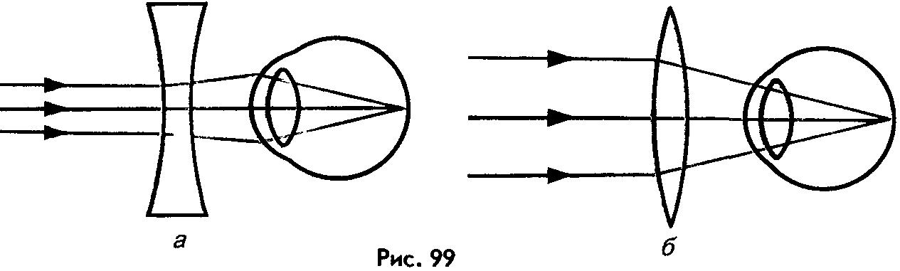 Клиники коррекции зрения в мурманске